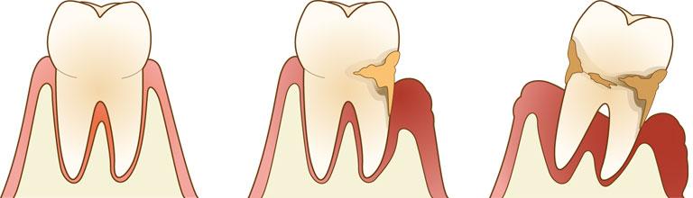 歯がしみたり痛い時