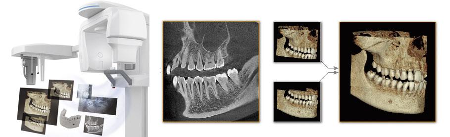 X-ERA SMART CTレントゲン アルト歯科 奏の杜