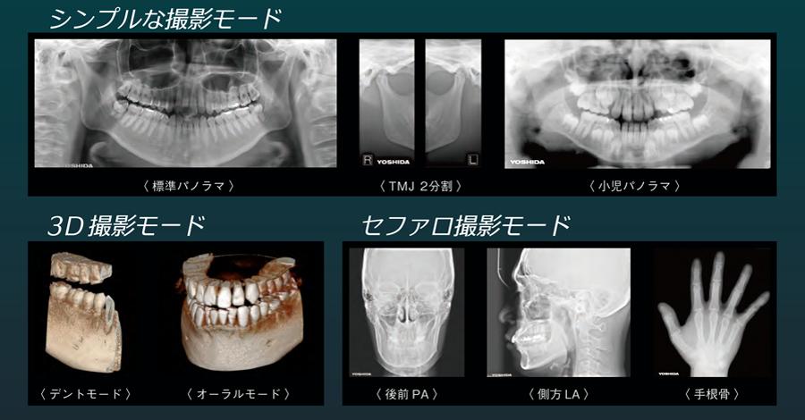 CTレントゲン アルト歯科・奏の杜